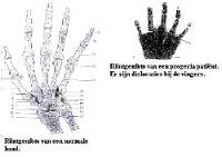 Handgewricht