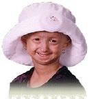 Progeria symptomen